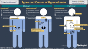 Classification & Diagnostic Criteria Of Hyponatremia
